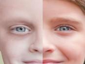 CDS2 léčba rakoviny